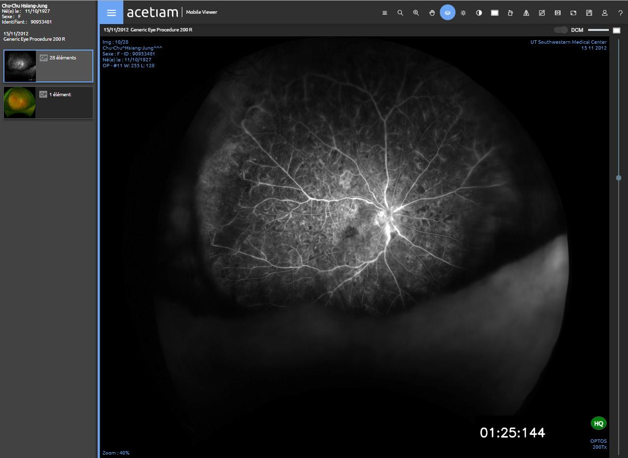 ACETIAM - Viewer Clinique Ophtalmologie